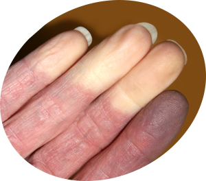 Raynaud's Fingertips Attack